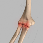 Arthroscopic Treatment of Elbow Arthritis