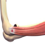 Tennis Elbow Surgery