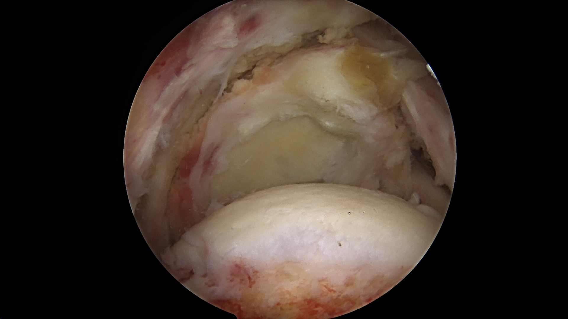 Massive retracted rotator cuff tear viewed from the lateral portal
