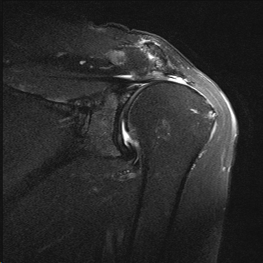 MRI showing massive retracted reparable rotator cuff tear