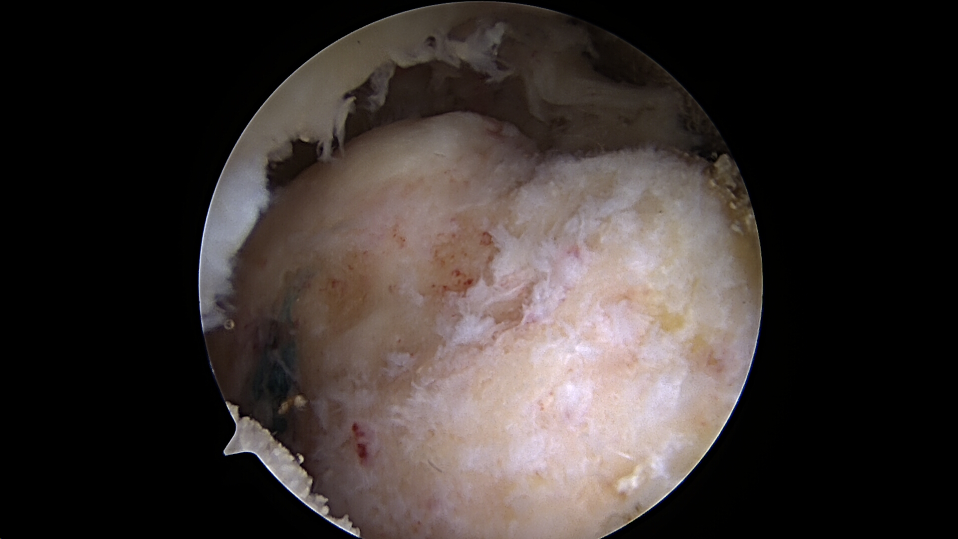 Massive retracted rotator cuff tear viewed from the posterior portal
