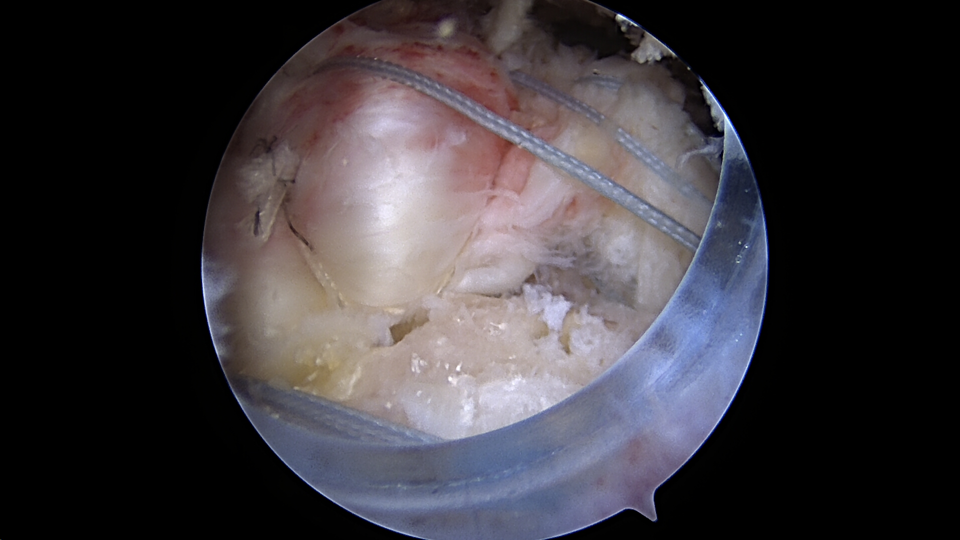 Single row medialized repair of previous massive retracted rotator cuff tear viewed from the lateral portal
