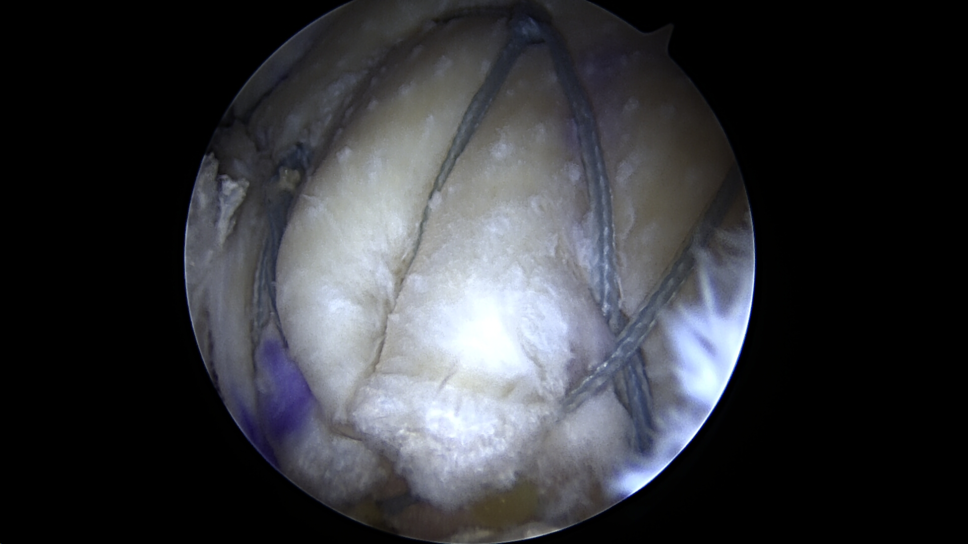 Arthroscopic augmentation of previous single row repair of massive retracted reparable single row repair using acellular dermal matrix graft viewed from the lateral portal
