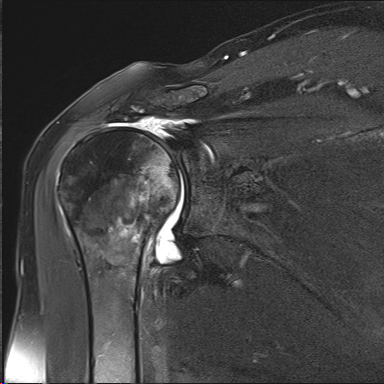 MRI showing massive retracted irreparable rotator cuff tear