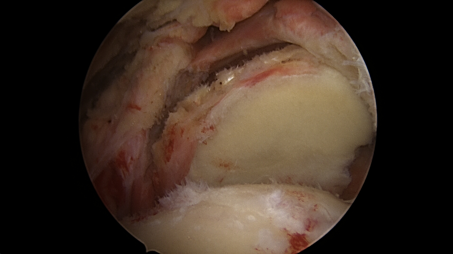 Massive retracted irreparable rotator cuff tear viewed from the lateral portal
