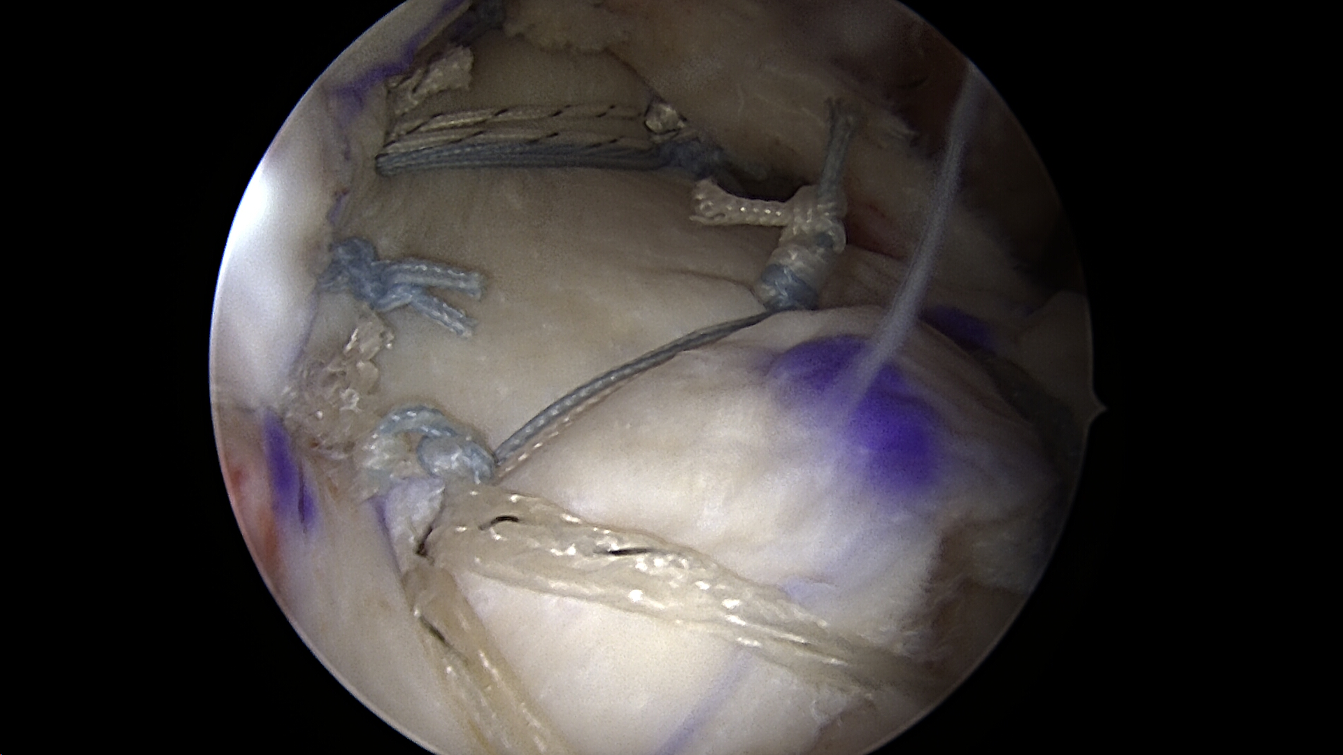 Superior capsule reconstruction of the previous massive retracted irreparable rotator cuff tear viewed from the lateral portal