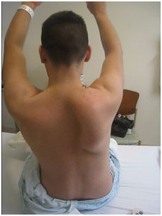 Scapula winging associated with long thoracic nerve palsy