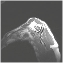 MRI with atrophy